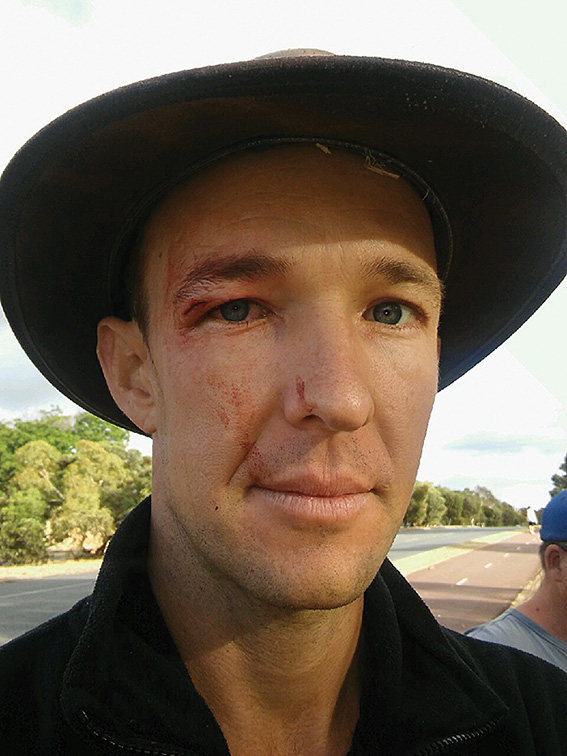 • Billy Amesz received a cut under the eye after being charged at by a mounted police officer. He says it was unprovoked.