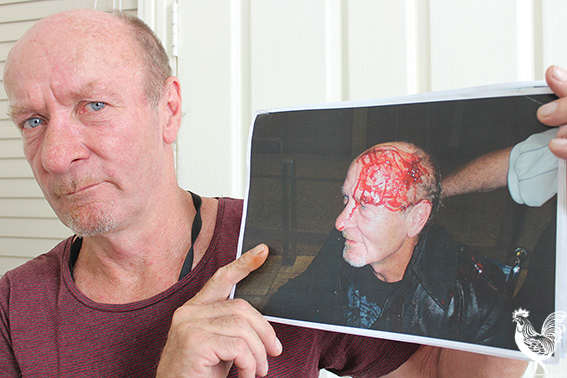 • Colin Brown with a picture of the injury suffered during his arrest. PhotobyTrilokeshChanmugam
